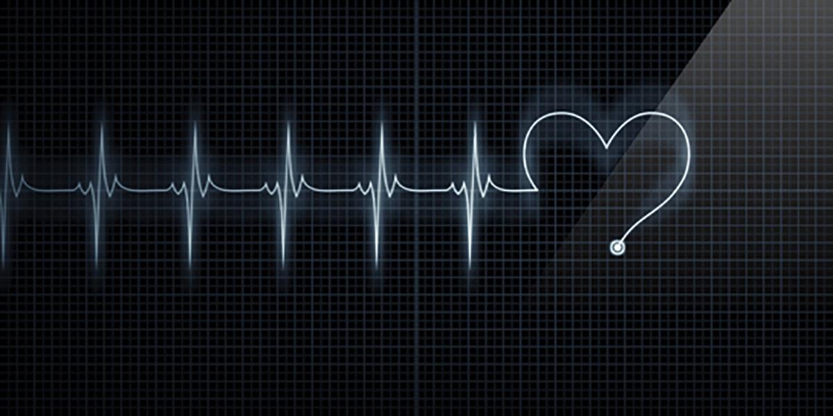 électrocardiogramme deuil